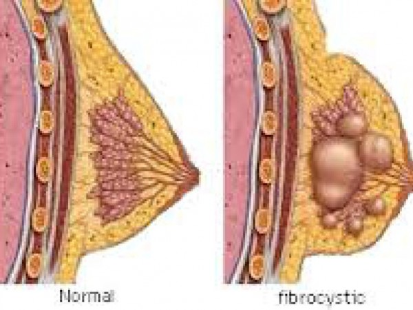 breast condition fibrocystic