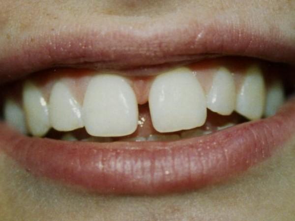 Do Adult Teeth Grow 41