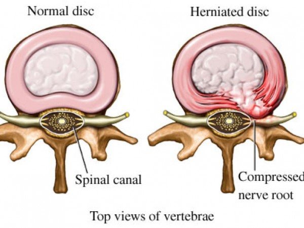 back pain? it's probably not your herniated discs - long beach, ny, Human Body
