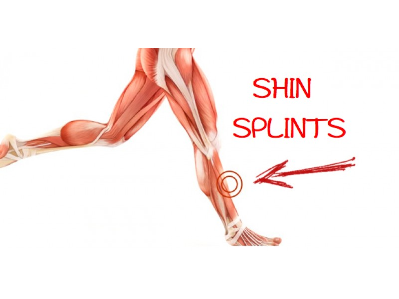 How to Prevent Shin Splints in Runners | Lake Forest, CA Patch