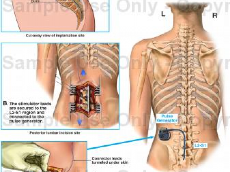 Chronic Pain Solution Spinal Cord Stimulators Scs
