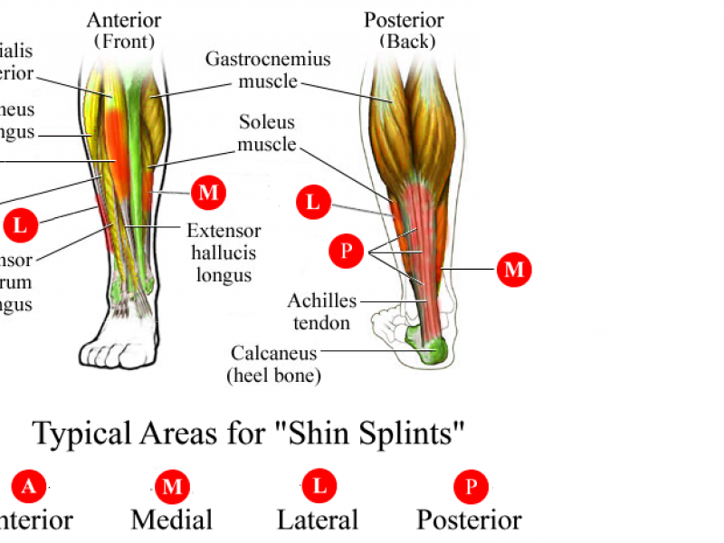 Shin Splints | Newtown, CT Patch