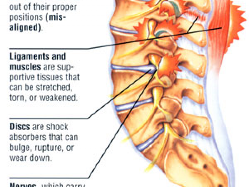 Anatomy Diagram Lower Back Pain Auto Electrical Wiring Diagram