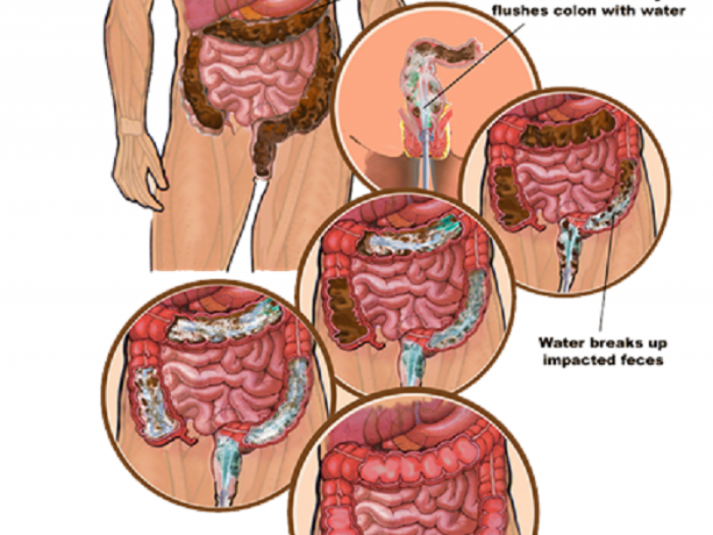 Benefits Of Colon Irrigation Barrington Il Patch