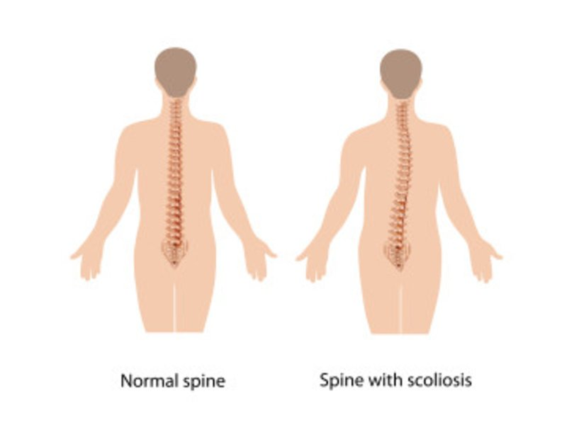 Scoliosis Explained By The Southern California Pain Institute