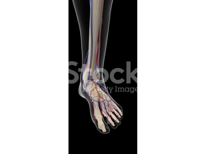 Peripheral Arterial Disease - Nonhealing wounds? Leg Pain ... A Common Man Poster