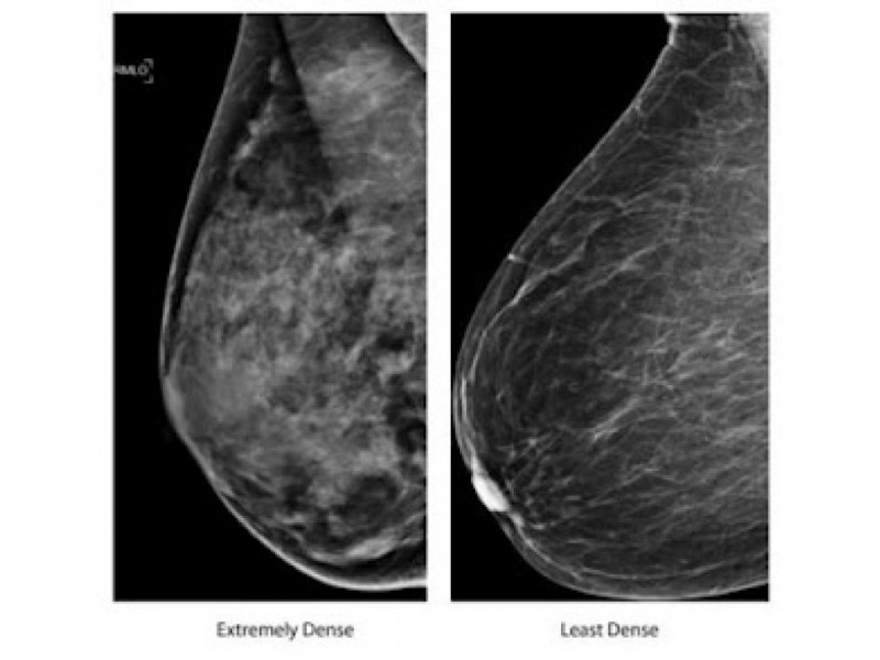 What Is Breast Density? with pictures - wiseGEEK