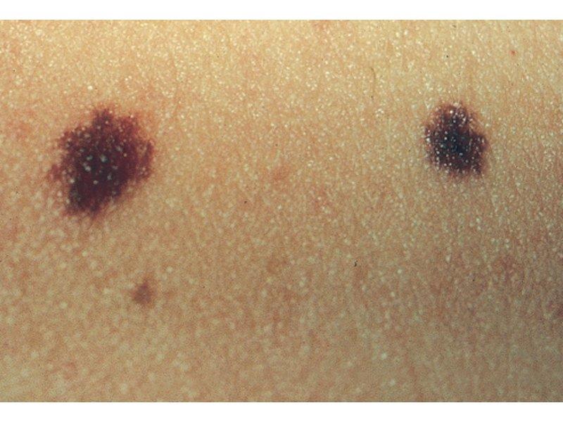 Normal Skin Moles - 0425