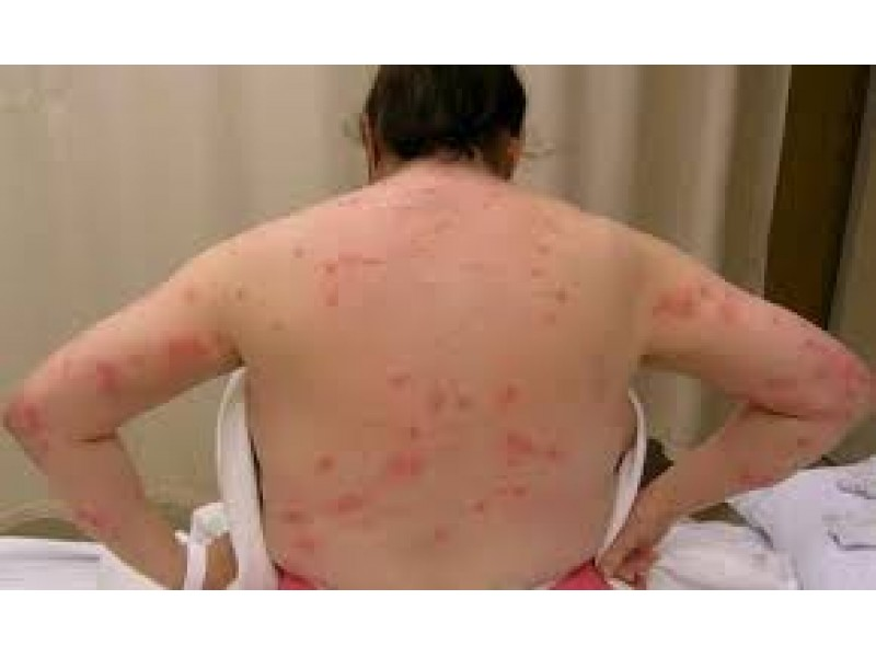 Summer Camp And Tips To Help Prevent Bed Bugs Sayville Ny Patch