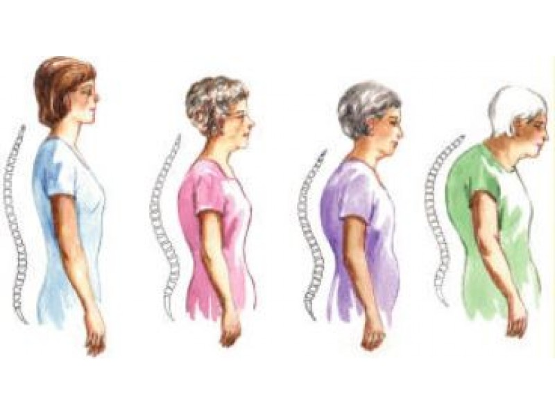 how to fix stooped posture