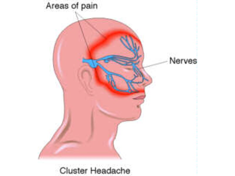 What Is A Cluster Headache? Symptoms, Cure And Treatment