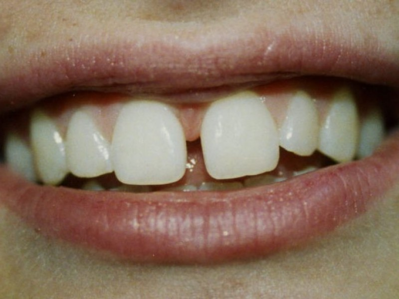 When do adult teeth mature