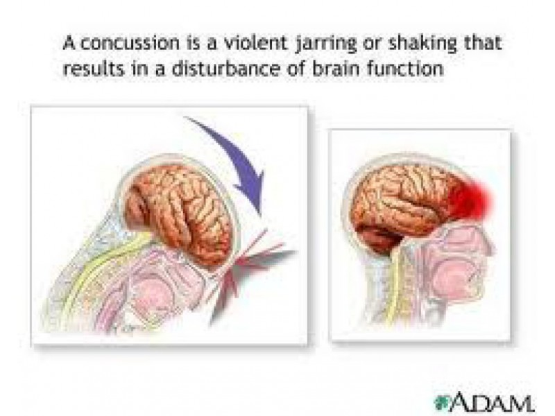 New Virginia Law: Mandatory Concussion Training for Parents, Student ...