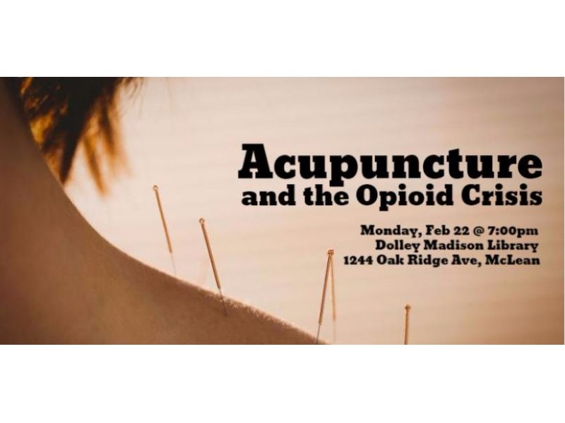 Community Acupuncture Virginia Beach